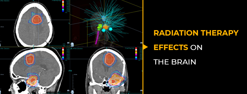 https://www.study24x7.com/article/1727/radiation-ther...
